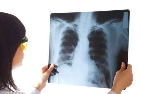 Mesothelioma Radiation Therapy